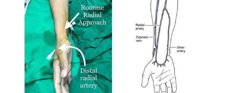 Distal Radial Access